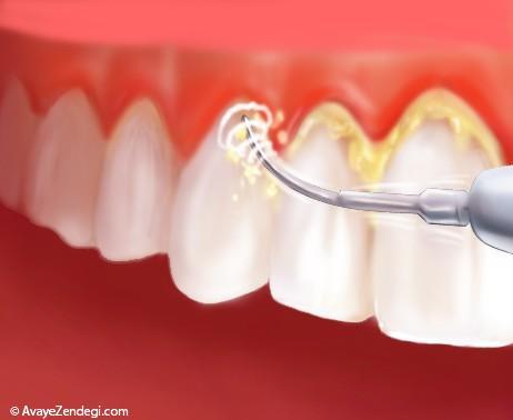 دندان ها با جرمگیری لق می شوند؟