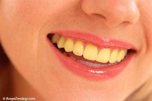 7 ماده ی غذایی که دندان ها را زرد می کند